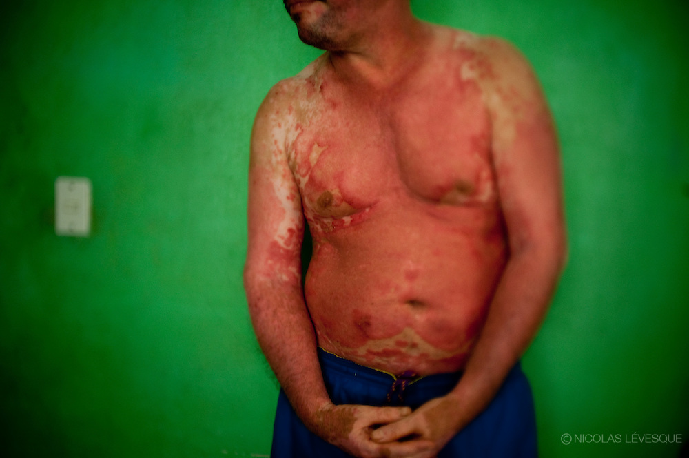 Trino Beita est victime d'un accident impliquant les produits chimiques utilisés. La compagnie ne lui donne rien. Monocultures d'ananas de la multinationale Del Monte. Buenos Aires, Costa Rica 2010.