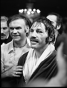 Nash vs Leon Championship Fight.    (N55)..1980..14.12.1980..12.14.1980..14th December 1980..At the Burlington Hotel, Dublin, Charlie Nash defended his European Lightweight Title when he took on Spain's Francesco Leon. .A bruised and battered Charlie Nash pictured after the bout.