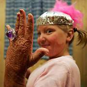 "Caryn Stewart shows off her costume jewelry ring inside her  cabin at the Miracle Burn Camp in Okoboji, Iowa.  The ring was part of a gift package each camp member received.  Stewart survived a plane crash that left her burned over  70 per cent of her body.   The  crash killed two members of her family.  Stewart was attending the annual summer  camp for the second year, where children learn to cope with the physical and psychological trauma suffered from their accidents. ..  ""This camp is all about faith,"" says camp director Teresa Goehring, who has been at the camp since 1993.  ""Kids come out of it with such an amazing outlook.""  This camp was in the summer of 2006."
