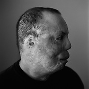 Sgt. Israel Del Toro who was severely injured in Afghanistan by a bomb with burns over 80% of his body seen years later at his home just outside of San Antonio, Texas.<br /> (Credit Image: &copy; Louie Palu/ZUMA Press)