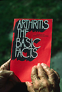 arthritic hands holding booklet on arthritis, medical information, deformed hands, joint disease