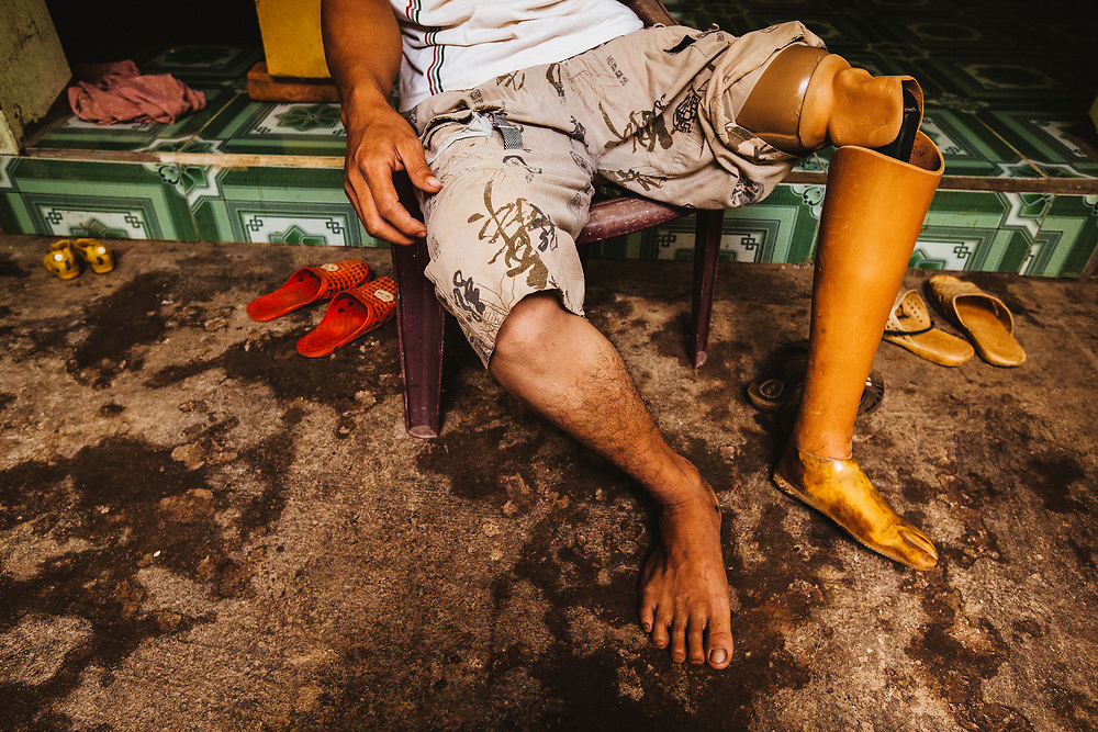 An amputee in Son La, Vietnam. Lo Van Tan lost his leg a few years ago in an accident at a brick factory in his home village. Tan's new leg was provided to him by POF, the Prosthetic Outreach Foundation, which operates within Vietnam.