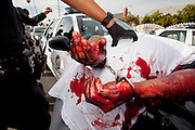Weapons Suspect Terry Griggs is detained by Police while awaiting medical attention on Friday, Feb. 4, 2011 in South Central Los Angeles, Calif. Griggs was spotted carrying a gun by LAPD officers leading to a foot pursuit. During the pursuit Griggs jumped over a razor wire fence causing severe lacerations. (photo by Gabriel Romero ©2011)