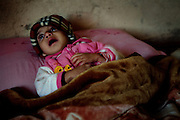 Zakhia, 3, a girl suffering from a severe neurological disorder, is crying inside her home in Fallujah, Iraq. Her brother, Jasim, 5, is also affected by a similar illness. The family has a healthy 8-year-old daughter, Sauusan, born before the 2004 US-led battles for the city, who regularly assists her two disabled siblings. The parents and their relatives have no history of birth defects.