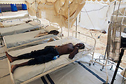 A male patient lies in a critical condition suffering form Cholera at Musina Hospital in South Africa..There were 664 confirmed cases of Cholera at the border town of Musina in South Africa. Officially the outbreak is under control, with the confirmed number of deaths from Cholera at 8 people. 51 of those admitted to the hospital have been under the age of 5 years old...Limpopo Health department has been working closely with IRC, Save the Children (UK), WHO and MSF to bring the outbreak under control through treatment and education programs in bordering villages and at the main IDP camp at Musina Showground..
