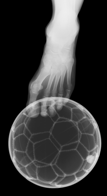 X-ray image of a soccer kick (white on black) by Jim Wehtje, specialist in x-ray art and design images.