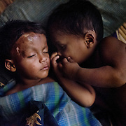 Seven days old when her village got attacked, Noor Binas was ripped from her mother's arms and tossed into a fire by a Rakhine. The head injury she incurred that day is still, two years after, affecting her badly. Her twin brother, here lying by her side, was left unharmed.