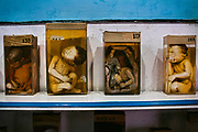 Babies who died as a consequence to the '1984 Gas Disaster', caused by the negligence of the American corporation Union Carbide, (now DOW Chemical) over thirty years ago, are exhibited in a special section of the Gandhi Medical College in Bhopal, central India. Almost half of the pregnant women exposed to Union Carbide's killer gas aborted spontaneously.