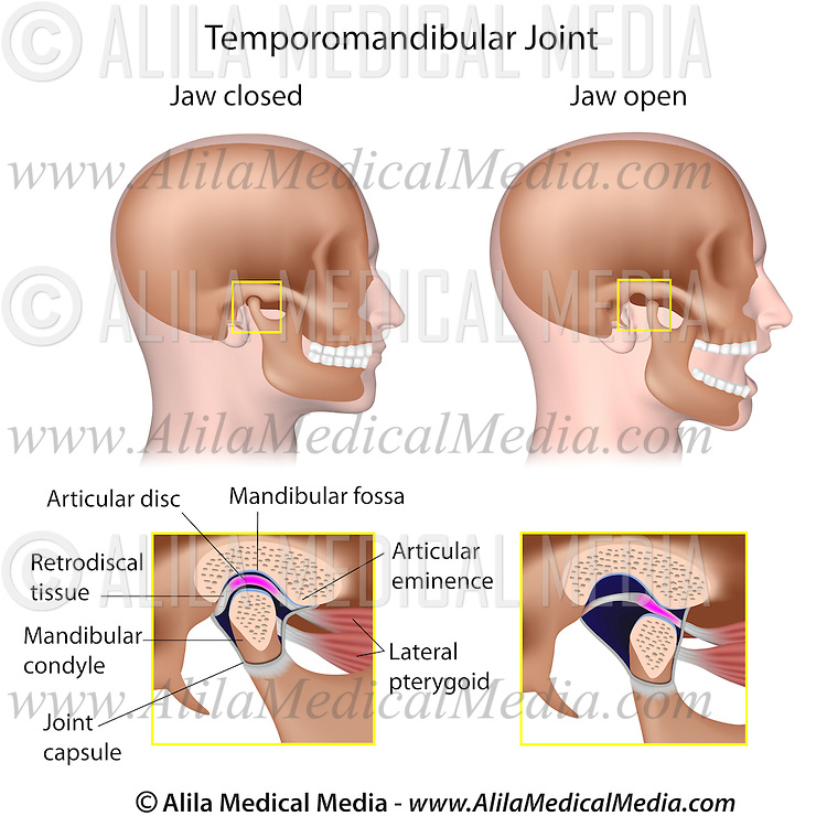 Temporomandibular joint (TMJ) | Alila Medical Images