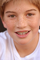 Young boy with braces