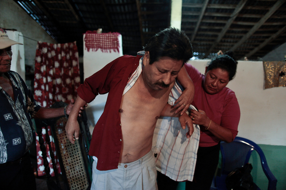 In this photo taken Wednesday, Jan. 4, 2012, Jesus Ignasio Flores, 51, chronic renal failure patient and former worker of the San Antonio sugarmill, is helped to dress by Carmen Rios, rigth, President of the Nicaraguan Association of the People Affected by Chronic Renal Failure, ANAIRC. Flores, worked as an irrigator and construction worker for 23 years at the San Antonio sugar plantation and mill. A mysterious epidemic is devastating the Pacific coast of Central America, killing more than 24,000 people in El Salvador and Nicaragua since 2000 and striking thousands of others with chronic kidney disease at rates unseen virtually anywhere else. Many of the victims were manual laborers or worked in the sugarcane fields that cover much of the coastal lowlands.