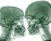 Kissing Couple. Two people kissing under x-ray