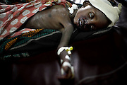 2 year-old Martha Zawadi from Mapendo village is treated by MSF for Malaria, Anemia, Malnutrition and Pneumothorax, at Rutshuru hospital, DRC, on Thursday, Feb. 7, 2008..Malnutrition, caused by the conflict, makes children particularly susceptible to Malaria. Children account for almost 50% of all deaths in DRC..