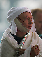 An injured man waits on news of his colleagues after he was pulled from the rubble and treated after a Powerful earth quack ripped through Christchurch, New Zealand on Tuesday lunch time killing at least 65 people as it brought down buildings, buckled roads and damaged churches and the Cities Cathedral. Photo Tim Clayton