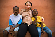 Dora Amuzu and her sons Magnus Apedo, 10 (left) and Kwaku, 7 sit outside their home in the town of Amasaman, Ghana on Thursday January 17, 2008. Albinism is an hereditary genetic disorder characterized by a lack of pigmentation in the skin and eyes. It only manifests itself in children when both parents - albino or not - carry the albinism gene.