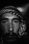 Subhi Abu Hamad 33, five children. He lives Shoukat, an area close to the border. During the 2014 war he lost her wife and one of his 5 childern was hit by two shrapnels, one perforated his lung an the second hit his spine paralysing his legs. Subhi has an depression syndrome from 2012 war and now his conditions are worstening. He lives in total isolation sleeping most of the time, but sometime he gets very violent.
