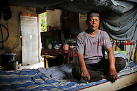 Bapak Arsyad at the Jongaya leprosy settlment, Makassar, Sulawesi, Indonesia. Bapak Arsyad, 60, works as a parking attendant on Jalan Sulawesi, Makassar.  He is originally from Takalar and has been at the Jongaya leprosy settlement for 30 years.  He lives in a shelter for older people along with Bapak Baharuddin.