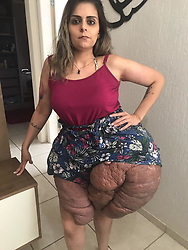 "EXCLUSIVE: By Sanjay Pandey and Supito Maity in Sao Paulo A 28-year-old Brazilian woman crippled by sheer weight and disproportionate size of tumours in her lower limbs is pleading for help from the netizens. Karina Rodini, who was fired from her job and is forced stay unmarried due to her medical condition, says the disease took a heavy toll on her personal and professional life. Karina has spent most of her adult life hiding it in public. But after last year's botched up surgery in a state-run hospital, her 'legs have become double the size and no clothes fit her', making her a pariah in the locality. Karina suffers from type one neurofibromatosis, a genetic condition marked by changes in skin colour and the growth of non-cancerous cysts in different parts. The disease affects one in 4000 people globally. According to the US National Library of Medicine, patient with type one neufibromatosis are born with one mutated copy of the NF1 gene in each cell. It said, ""In about half of cases, the altered gene is inherited from an affected parent. The remaining cases result from new mutations in the NF1 gene and occur in people with no history of the disorder in their family."" Karina, from Sao Paulo, was just two when 'coffee milk' patches started to appear on her skin. She said due to the lack of formation of lumps, the doctors could barely make out what ailed her. ""I was diagnosed with neurofibromatosis when I was only two years old, at first it was only 'coffee milk' patches so the doctor couldn't do anything because there were no lumps or tumours,"" she said. The cysts started to show up almost nine years later. One year later, when she was 12, Karina underwent a surgical procedure to remove a cyst, weighing around nine kilograms, from her uterus. According to her, the cavity gave her a semblance of a pregnant woman. Being the oldest child among three, Karina has always received love from her mother, Fatima M. Abou Ali, 58, a single woman, who raised"