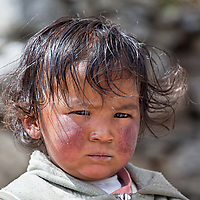 A girl in Khumjung. The harsh weather conditions have left their traces on this girl's cheeks.