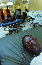 A man who was shot through the face during a security operation carried out by the Haitian National Police and UN forces in Belair, one of the most dangerous neighborhoods in Port Au Prince, lays unattended to in an area hospital.  Friends had to transport the man to the outskirts of the neighborhood, as the Red Cross refuses to enter many dangerous neighborhoods.   It is often difficult to transport the wounded to area hospitals as Red Cross ambulances refuse to enter some neighborhoods and family members are afraid that any gun shot victim will be taken from the hospital and put in jail. The security situation in Haiti has deteriorated in recent months with many Hatians and human rights groups accusing the Haitian National Police and various gangs of human rights violations.