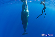 photographer Deron Verbeck and juvenile female sperm whale, Physeter macrocephalus ( Endangered Species ), Kona, Hawaii Island ( the Big Island ), Hawaii, U.S.A.  ( Central Pacific Ocean ) MR 467