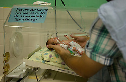 "Dr. Daniel Alvarez a pediatrician Hospital San Benito holds very premature baby. ""We call these children little miracles because it's a miracle that he's alive with the conditions we have in this hospital,"" he said. ""She was premature, a condition that is associated with adolescent mothers. There is a restriction of growth because the womb is not big enough. Her lungs were not developed enough to be outside of the mother's womb so early. We didn't think that she was going to survive. But she has proven us wrong and is battling to survive and to eat. Thanks to God she has progressed really good. But she still has many complications in her way."""