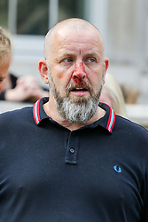 "© Licensed to London News Pictures. 07/09/2019. London, UK. A Pro Brexit protester is seen bleeding from the nose as he was by the confronted police officers in Whitehall as anti-Brexit protesters take part in ""Defend our Democracy and Stop Brexit"" demonstration in Whitehall, Westminster. The protesters are demonstrating against the British Prime Minister Boris Johnson's intention to prorogue Parliament until 14 October. Photo credit: Dinendra Haria/LNP"
