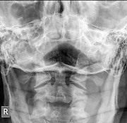 Normal Cervical spine x-ray of a 63 year old male patient front view