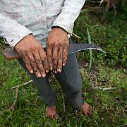 The hands of Melicio, a young farm labourer who works in the sugar cane fields.  Quidan-Kaisahan is a charity working in Negros Occidental in the Philippines. Their aim is to keep children out of work to secure them education.
