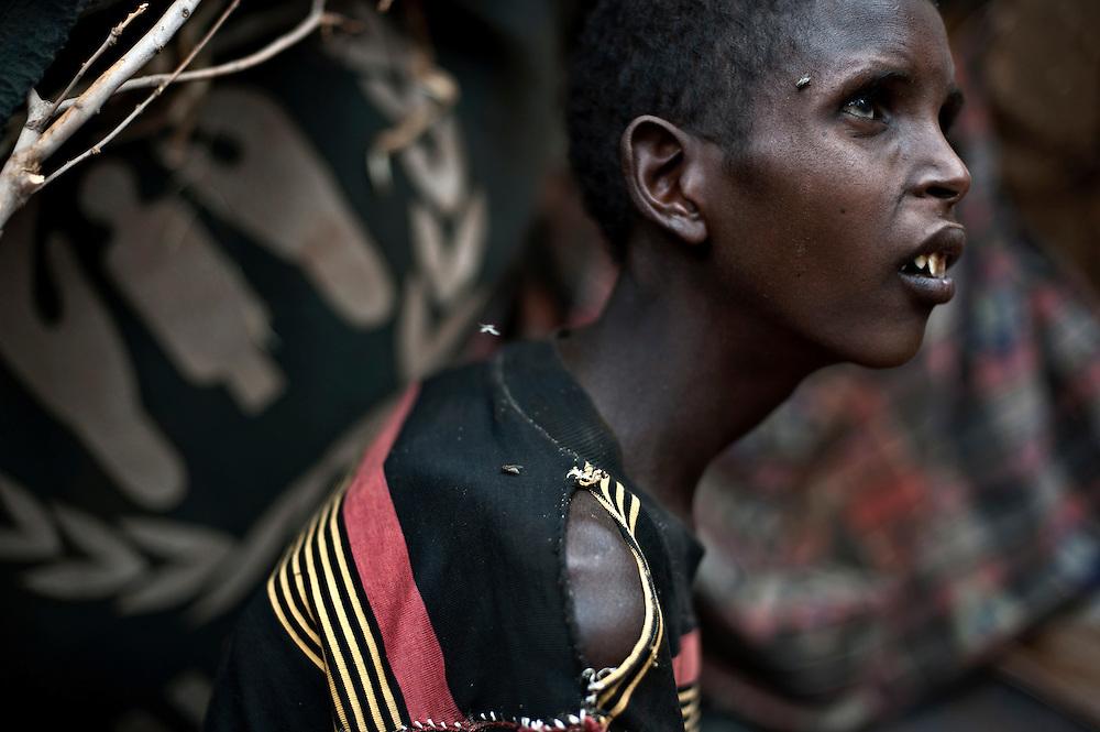 kenya, Dadaab, le 12-08-11 - camp Ifo 3. Avec plus de 400000 réfugiés, en majeure partie des somaliens ayant fuit la guerre et la famine qui sévit dans leur pays, Dabaab est le plus grand camp de réfugiés au monde. À 20 ans, Ibrahim souffre de malnutrition. Assis là dans l'indifférence, Ibrahim ne parle pas. Arrivé depuis 17 jours il refuse de boire et de s'alimenter. À la moindre gorgée de plumpy (pâte de cacahuète enrichie) ingurgitée, il vomit et est pris de diarrhées sévères explique son père. Le voyage l'a affaibli, il a duré 30 jours depuis Dinsor. Lui, incapable de marcher, a fait le trajet sur une carriole tractée par un âne qui mourra exténué.