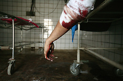 The body of a UN employee from Canada is seen in the morgue at an Iraqi hospital in Baghdad, Iraq on Aug. 20, 2003. The day prior he was killed while working at the UN base inside the Canal Hotel where a cement truck packed with explosives detonated outside the offices killing 20 people and devastating the facility. This was an unprecedented suicide attack against the world body with at least 100 people wounded.