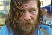 Phil Williams, a homeless man, spends time in detox in Sacramento, CA after being found on the street drunk.