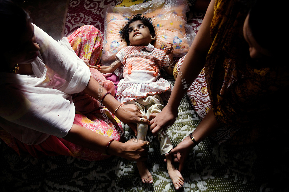 Apesha, 4, is participating to a physiotherapy session with her mother, (left) inside the Chingari Rehabilitation Centre in Bhopal, Madhya Pradesh, India, near the abandoned Union Carbide (now DOW Chemical) industrial complex Copyright: Alex Masi