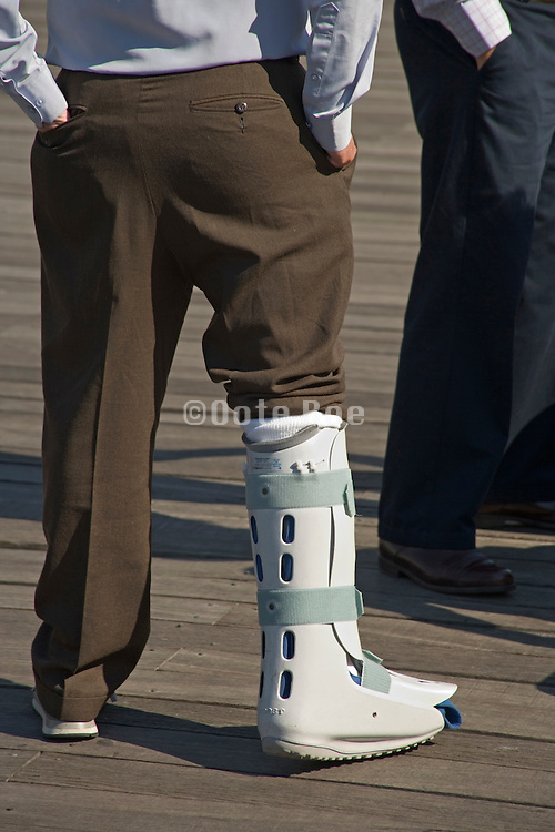 man with leg in a cast relaxed standing
