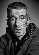 04:12:2013<br /> <br /> The Scheme's Marvin Baird (34) back in his flat after being stabbed and slashed in his Kilmarnock home last night.<br /> <br /> Marvin show off the injuries to his head and face.<br /> <br /> Pic:Andy Barr<br /> www.andybarr.com<br /> Copyright Andrew Barr Photography.<br /> No reuse without permission.<br /> andybarr@mac.com<br /> +44 7974923919