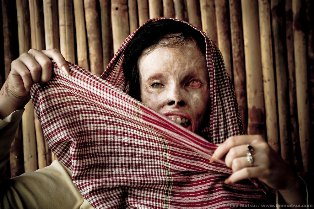 Victim of acid attack, Phnom Penh, Cambodia.