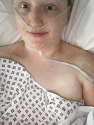 Emma lies in a hospital bed following her surgery. Emma McCauley, 26, of Barking, East London had to undergo a double mastectomy just weeks after losing her mother to breast cancer, discovering she herself had breast cancer and keeping it a secret whilst caring for her mother in her final weeks. London, July 31 2019.
