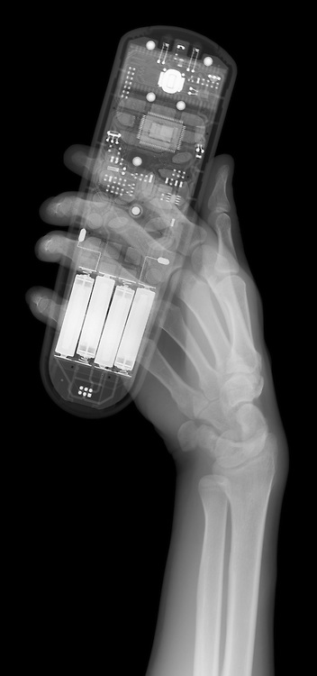 X-ray image of hand and remote control (white on black) by Jim Wehtje, specialist in x-ray art and design images.