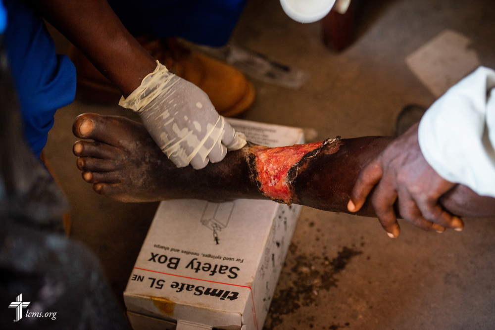 Michael Bio, a nurse studying to be a Community Health Officer, treats a man with a wound on his leg on the fifth day of the LCMS Mercy Medical Team on Friday, May 11, 2018, in the Yardu village outside Koidu, Sierra Leone, West Africa. LCMS Communications/Erik M. Lunsford