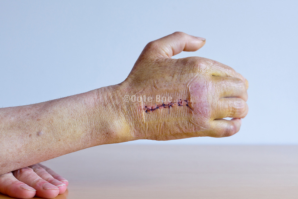 scar with stitches after operation on the broken third metacarpal bone in the hand with imprint of the first aid bandage