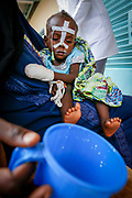 A lethargic two year old Kadidja receives premix from her mom at a hospital run by Médecins Sans Frontières in a camp for Darfur refugees in Iriba, close to the Sudan border. Premix is a vitamin and mineral enriched powder based on wheat or maize.  The genocide in Darfur with its ethnic cleansing is also a direct result of climate change. Farmers and herders are pitted against each other over diminishing  pasture and resources. The barren land is taken over by the Sahara desert, which has expanded 60 miles over the last 40 years. Rainfall is down by 16-30 percent. Crops are failing. With further global warming, conflicts like Darfur are likely to be repeated on even larger scale.