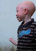 The Darkest Shade of White: An in depth look into the lives of Tanzania's persecuted albinos <br /> <br /> Meeting  with  the  albino  children  from  the  Under  The  Same  Sun  organization  is  no  small  feat.  Here,  in  Tanzania,  their  bodies  are  worth  more  than  gold.  Witchdoctors  use  their  appendages including  noses,  genitals,  tongues,  fingers,  hands,  and  ears  to  supposedly  bring  their  clients good  luck  in  politics,  business,  or  even  mining.  Needless  to  say,  the  organization  must  keep them under constant protection for their security.   At least 76 albinos have been murdered in Tanzania since 2000. In  early 2015, 200 people were arrested as part of a crackdown on  the criminal element that hunts the albinos. The Tanzanian President   Jakaya   Kikwete   denounced   the   attacks,   calling   themDzdisgustingdz   and Dza   big embarrassment to the  nationdz.  But  with body parts  selling for $500 and entire  bodies fetching $75,000,  the  fight  to  end  albino  persecution  will  be  difficult  in  a  country  where  the  average monthly salary is less than 40 US dollars. Before  entering  the  children's house,  a  guard  checks  my  bags.  Tension  is  particularly  high  at this  time  as  the  Tanzanian  general  election  is  right  around  the  corner.  Voters  will  elect  the President, members of Parliament and local government officials.  Ester, the woman who takes care  of  the  children  on  a  daily  basis,  tells  me  how  worried  she  is  about  these  upcoming elections.  She  assures  me  that  after  I  hear  the  stories  of  the  children's  suffering,  I  will  be  moved  and impressed  by  their  strength.  Many  have  been  maimed.  Many  have  lost  their  families.  Even worse: some were sold or attacked by their families. I'm half expecting to walk into a room full of traumatized kids, trembling in complete silence, with far away gazes. To my relief, they are not like that at all. Sure, I meet some