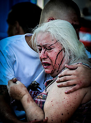 Son hugs tries comfort her mother after injury after Ukranian army shelling downtown of Donetsk, Ukraine, 23 August 2014. Residential areas in several districts of Donetsk, including the Central part of the city, suffered from artillery fire, five people was killed and 15 wounded, the press centre of Donetsk city Council.