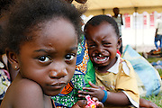 Post Operation patient Christinee MALUNDANA looks at the camera whilst her brother is yet to have surgery on his cleft lip. Operation Smile South Africa. Clinique Ngaliema, Avenue Des Cliniques, Kinshasa, DRC
