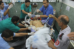 Doctors treat a Palestinian who they said was wounded in an Israeli airstrike, at a hospital in the southern Gaza Strip City of Rafah, on July 9, 2014. EXPA Pictures © 2014, PhotoCredit: EXPA/ Photoshot/ Emad Drimly<br /> <br /> *****ATTENTION - for AUT, SLO, CRO, SRB, BIH, MAZ only*****