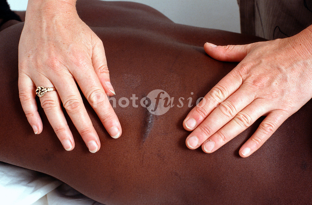 Doctor examining a bayonet scar UK