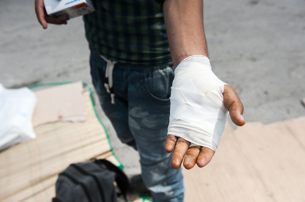 Mushtaba&rsquo;s banded hand after being treated by MSF doctor Dimitris Giannousis at the mobile camper van of MSF at Mytiline port, Lesvos, Greece. <br />  Mushtaba from Afghanistan burned his hand in a forest fire in Turkey few days before coming to Lesvos.