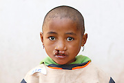 No. 216, Clarra Hanitriniaina, BCL, bilateral cleft lip,  female, 4 years old, before, portrait..Operation Smile South Africa.Operation Smile Mission to Hospital Joseph Ravoanangy Andrianavalona,.Antananarivo, Madagascar. September 17th - 29th 2011..© Operation Smile Photo / Zute & Demelza Lightfoot.www.lightfootphoto.com