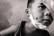 6 year-old Konglan La lost his left eye after throwing a cluster bomb he found near his home.
