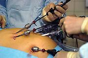 Nederland, Heerlen, 2-7-2004..Operatie in operatiekamer, ok, o.k. in Atrium ziekenhuis Heerlen. gezondheidszorg, ok verpleegkundigen,  assistenten, chirurgie, kosten, wachtlijsten, instrumenten, Medisch specialist, ziekte, transplantatie, donor, anesthesie, kijkoperatie, scoop..Foto: Flip Franssen